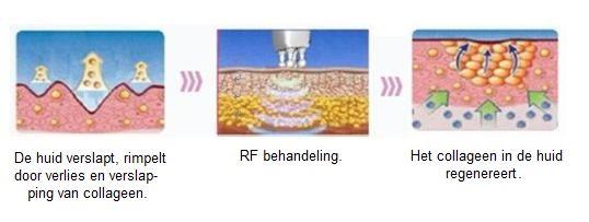 RF therapie