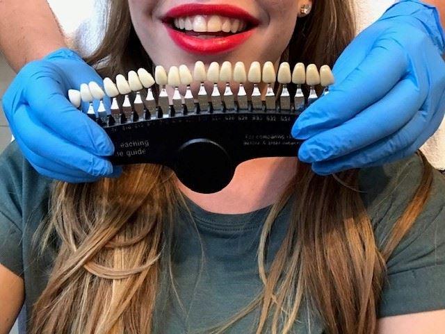 tanden bleken de terp hoogeveen